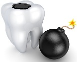 tooth with mercury amalgam on top